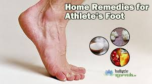 9 Home Reme s for Athlete s Foot Cure with Natural Treatment