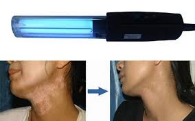 anti vitiligo uv therapy l psoriasis vitiligo eczema