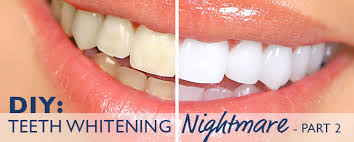 DIY Teeth Whitening Nightmare Part 2