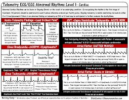 Cardiac ECG EKG Bradycardia Atrial Fibrillation Flutter Nursing