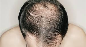9 Faktor Mengapa Rambut Lelaki Mudah Gugur Cepat Botak