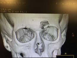 Fracture Orbital Floor Icd 10 by New Jersey Plastic Surgery Llc Frontal Sinus Fracture New Jersey
