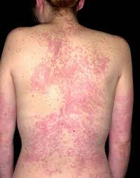 Heat Rash From Tanning Bed by Urticaria Hives Nettle Rash Or Angioedema Symptoms U0026 Treatment