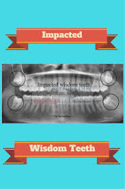 460 Best Dental Assisting Images On Pinterest | Orthodontic ... Home Sbh Health System New Jersey Herald Home World Bird Sanctuary May 2015 955 Smith Circle Dawsonville Ga 30534 Harry Norman Realtors 999 Ktdy The Best Variety Of The 80s 90s And Today Joseph M Schmidt Dds Waukesha Wi Oral Maxillofacial Sleich Toys Animals Figures Toysrus 25 Family Office Ideas On Pinterest Desks Buyinmissippicom Golden Eagle Snatches Kid Youtube