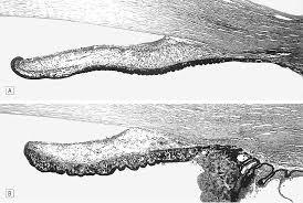 hamartomas of the iris and ciliary epithelium in tuberous