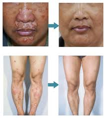 Narrow Band Uvb Lamp For Psoriasis by Lamps For Vitiligo Uvb 311nm Narrow Band Uvb Lamp Psoriasis