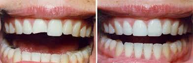 Dental Bonding San Antonio Dental Veneers Restore Smiles