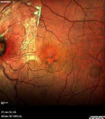 Multicolor Image Of 44 Year Old Male Patient Showing The Presence A Grade 3 Epiretinal Membrane With Significant Distortion Underlying Retina And