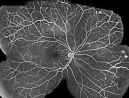 Sickle Cell Retinopathy Fluorescein Angiography Shows Characteristic Lesions Of The Retinal Periphery