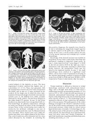 Terson Syndrome CT Evaluation In 12 Patients
