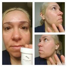 Pumpkin Enzyme Peel by Aesthetic Back Bar Professional Skin Care U0026 Spa Products
