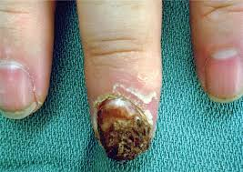 Nail Bed Melanoma by Skin Cancer Of The Hand And Upper Extremity Causes Symptoms And