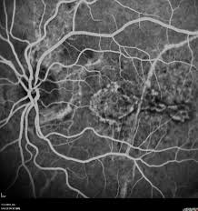 The Fluorescein Angiography Of Left Eye Shows At 30 Seconds Hyperfluorescence Angioid Streaks