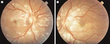 Fundus Photograph Of The Right A And Left B Eyes Demonstrating Bilateral