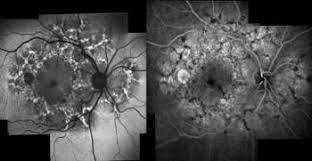 Pattern Dystrophy On The Left Fundus Autofluorescence Aspect Right Fluorescein Angiographic