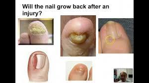 toenail injuries treatment youtube