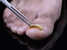Toenail Separated From Nail Bed by Toenail Fungus Pictures Supporting Family And Caregivers