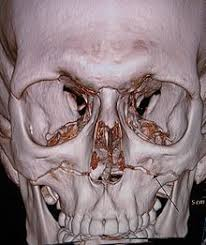Orbital Floor Fracture Icd 9 by Le Fort Fracture Of Skull Wikipedia