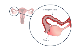 Uterus Lining Shedding Without Blood by Ovulation Understanding Ovulation To Get Pregnant