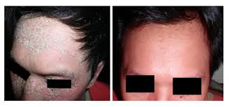 results of psoriasis phototherapy with narrowband uvb ls