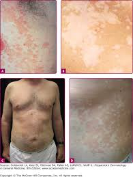 chapter 189 yeast infections candidiasis tinea pityriasis