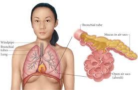 Pneumonia Home Treatment