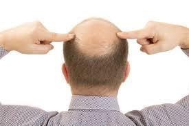 3 Hal Yang Menyebabkan Pria Jadi Botak