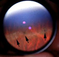 Clinical Guide To Degenerative Myopia