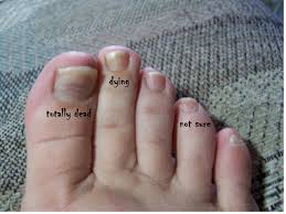 nails lifting from nail bed beautify themselves with sweet nails