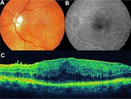 Notes A Color Photograph Of An Epiretinal Membrane Vascular