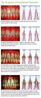 The Progress Of Periodontal Diseases - See The Mouth Body ... Best 25 Dental Ideas On Pinterest Dentistry Assistant Office Design Competion Small Practice Of The Mrs Krsis Preschool Visit From Dentist We Like Barn Door Idea For Checkout Stations Dentologie Stone Barn Meet Staff Clara Harris Murder Trial Pictures Getty Images Renew Barnwood Accents Bgw Cstruction Working Client Oral Mouth Male Checkup 1080 Stock The 74 Best Images About Reception Desks Are You Willing To Improve Your Smile Dentists In Melbourne Cbd 96 Dhg Graduation