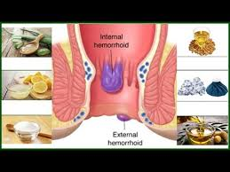 How To Cure Hemorrhoids Piles Naturally Top 12 Natural Home