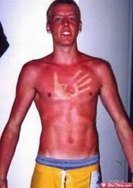 156 best amusing sunburn and tan lines images on pinterest funny