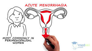 Uterine Lining Shedding Period by Obstetrics And Gynecology U2013 Abnormal Vaginal Bleeding By Kate