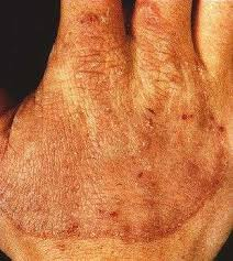 dermatophytosis tinea infections medical information patient