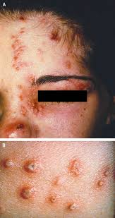 Viral Shedding Herpes Zoster by Herpes Zoster Now Nejm Now Nejm