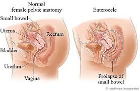 interieur corps humain femme le prolapsus pelvien