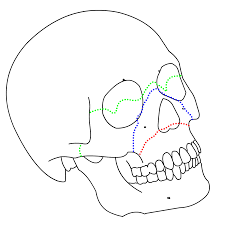 Orbital Floor Fracture Non Blowout by Le Fort Fracture Of Skull Wikipedia