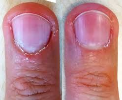 finger yeast infection guide