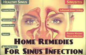 18 Effective Home Reme s For Sinus Infection My Health Tips