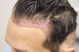 Does transplanted hair fall out after a FUE hair transplant