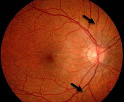 Angioid Streaks Arrows In A Patient With Pseudoxanthoma Elasticum The Normal Retinal Orange Color Has An Skin Discoloration Peau Dorange Most