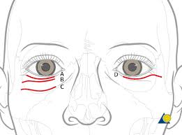 Fracture Orbital Floor Treatment by Midface Approach Lower Eyelid Transcutaneous Orbit