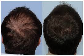 propecia hairline results reviews does it work pharmacy forum
