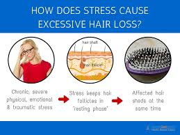 excessive hair shedding causes 3 top causes why your hair is falling out and what you can do