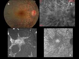 A Color Photograph Of Patient Affected By ChoroideremiaB Retromode Imaging Is Able To Delineate The Choroidal Vessels C BL AF Shows An Irregular Area