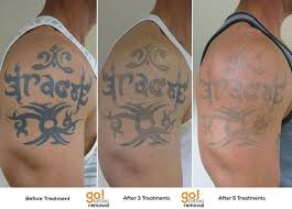 Tattoo Removal Is A Process This Client Started With Us 12 Months Ago And At