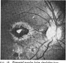 Figure 4 From Angioid Streaks I Ophthalmoscopic Variations And Diagnostic Problems