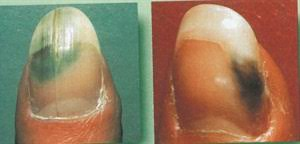 Toenail Separated From Nail Bed by Green Monsters Health Nails Magazine