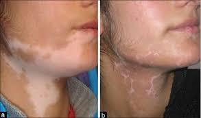 Woods Lamp Examination Images by Using Wood U0027s Lamp To Detect Vitiligo Best Vitiligo Treatment